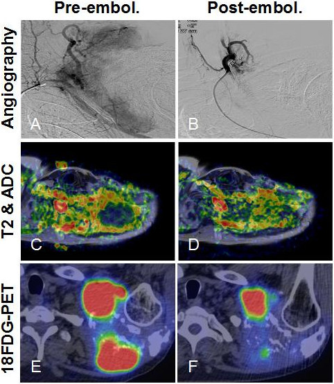 Post-embolization tumor response in the shoulder plasmacytoma could be best demonstrated with functional imaging studies. (A) Angiogram of the left shoulder revealed a well-vascularized lesion, which was supplied by branches from the left subclavian artery. (B) Selective catheterization of the feeding arteries and embolization of the tumor vasculature with 350 to 500 μm PVA particles were performed in two sessions from a right femoral puncture and a left brachial puncture, respectively. Some arterial branches were also closed off with coils. DWIBS MRI proved to be a sensitive modality for locating densely packed foci of tumor cells inside a heterogeneous lesion. (C) We co-registered ADC maps with T2 weighted images that allowed more precise comparison between baseline and follow-up scans. (D) The increase of ADC values by 4 weeks post-embolization was clearly visible on the fusion map. (E) Some DWIBS restricted foci also showed high 18FDG uptake on PET-CT. (F) Following embolization, decreased metabolic activity was detected, which was inversely correlated with increased diffusivity, a sign of tumor necrosis.