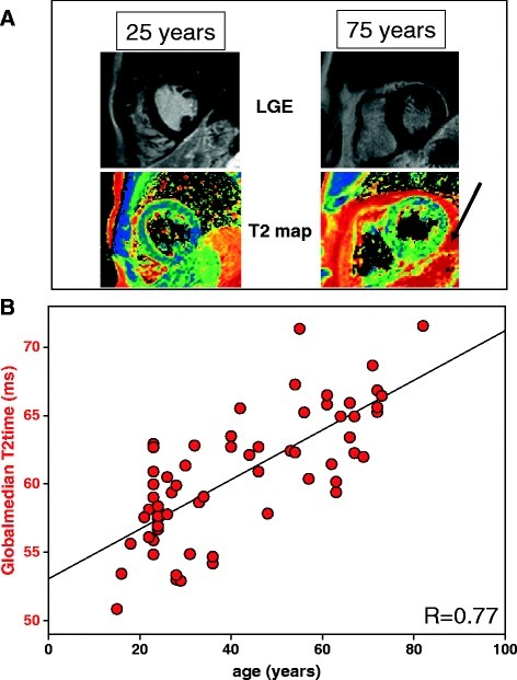 Age correlates with global median T2 time in absence of known cardiovascular disease. (A) Typical examples of two volunteers of different age (25 and 75 years) receiving T2 mapping and Late Gadolinium Enhancement (LGE). While there is no sign of a structural heart disease (LGE), T2 maps display differences in distribution of myocardial T2 values already upon visual inspection. Note the increased pericardial fat in the older volunteer (arrow). (B) Mean global T2 values increase with age (R = 0.77 with n = 69).