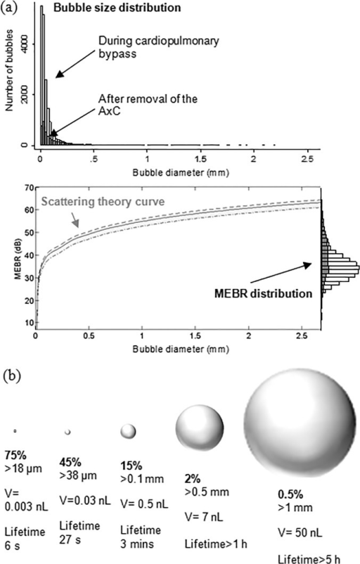 Estimated distribution of bubble sizes detected during cardiac surgery.(a) Distribution of bubble sizes estimated based on analysis of the ultrasound backscatter (MEBR values) from 18667 embolic signals. Overall, the median diameter of bubbles was 33 μm (IQR: 18 to 69 μm). Signals observed following removal of the aortic cross-clamp are shaded. (b) Percentage of emboli, bubble volume, and predicted dissolve times for 18 μm, 38 μm, 100 μm, 500 μm and 1 mm diameter air bubbles.