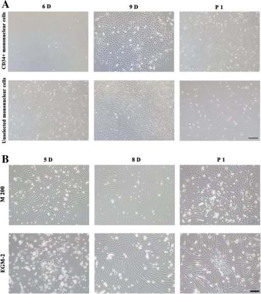 The morphology of EPCs isolated from Rhesus monkeys. A. Selected CD34+ mononuclear cells and unselected mononuclear cells were cultured in M 200, observed on day 6 (6D) or day 9 (9D) after culturing and day 4 after the first passage (P1). Both selected CD34+ and unselected mononuclear cells were cerioid shape on day 6, formed cobblestone-appearance colonies on day 9, and become more spindle shape with the loss of stereognosis after first passage. Bar =200 μm. B. Unselected mononuclear cells were cultured in either M 200 or EGM-2 media, observed on day 5 (5D), day 8 (8D) after culturing and day 1 after the first passage (P1). Cells cultured in M 200 proliferated faster than in EGM-2, but cells in EGM-2 had better stereognosis. Bar =100 μm.