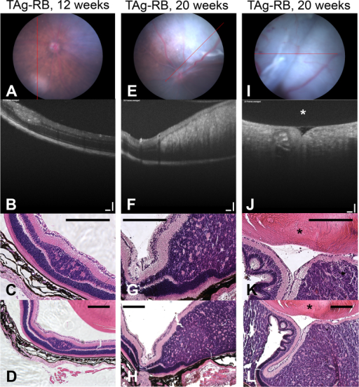 Histology validates OCT findings. Examples of a 12-week and two 20-week T-antigen retinoblastoma (TAg-RB) eyes analyzed with funduscopy (A, E, I); optical coherence tomography (OCT) (B, F, J), OCT scale bars=100 µm; high-magnification hematoxylin and eosin (H&E; C, G, K); and low-magnification H&E (D, H, L), scale bars=200 µm. The lens is indicated with an asterisk (*).