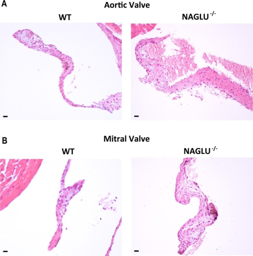 Histological analysis of cardiac valves thickening.A. Representative images of haematoxylin and eosin (H&E) of aortic valve sections from WT and NAGLU-/- hearts at 32 weeks of age (20x magnification). B. Representative images of haematoxylin and eosin (H&E) of mitral valve sections from WT and NAGLU-/- hearts at 32 weeks of age (20x magnification). Scale bars: 20 μm.