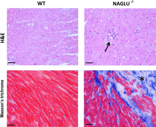 Histological analysis of myocardial inflammation and fibrosis in NAGLU-/- mice.Representative H&E staining for inflammatory infiltrate and Masson's trichrome staining for fibrosis in LV tissues from WT and NAGLU-/- mice (40x magnification). Arrow indicates inflammatory infiltrates within myocardial fibers and asterisk (*) indicates fibrosis within myocardial fibers. Scale bars: 20 μm.