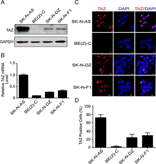 TAZ is commonly expressed in neuroblastomas(A, B) Four neuroblastoma cell lines SK-N-AS, BE(2)-C, SK-N-DZ, and SK-N-F1 were harvested and subjected to Western blot and qRT-PCR to detect TAZ expression. (C) Four neuroblastoma cell lines were fixed and immunostained with TAZ monoclonal antibody (red), nuclei were counterstained with DAPI (blue), and evaluated by immunofluorescent microscopy. (D) Quantitative analysis was performed to evaluate the percentage of TAZ-positive cells in four neuroblastoma cells. Data are presented as mean ± S.D. from three independent experiments.