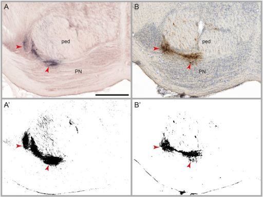 Results of automatic labeling detection in images of microscopic sections. Coronal sections from corresponding anteroposterior levels through the pontine nuclei (PN) and the cerebral peduncle (ped) with BDA labeling and Neutral Red counterstain (A), and Pha-L labeling with thionine counterstain (B). Processed images highlighting detected labeling are shown below the original sections (A',B'). Dense clusters of labeled fibers are well preserved in the labeling maps. Note that noise levels are higher in the BDA image compared to the Pha-L image. Scale bar: 1 mm