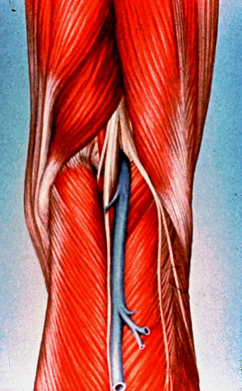 semimembranosus muscle; biceps femoris muscle; gastrocnemius muscle; bifurcation vein; sciatic nerve; tibial nerve; common fibular (peroneal) nerve; popliteal artery; small saphenous vein
