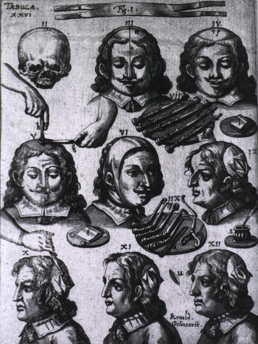 <p>Nine illustrations on the use of trephining instruments, some of which appear in Tabula VI.</p>