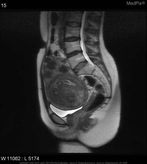 This MRI shows multiple discrete areas of low signal intensity within the uterine muscle and below the uterine serosa.  An irregularly enlarged uterus is also evident.