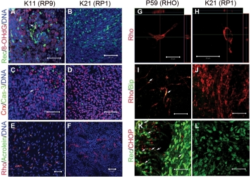 Cellular stress in patient-derived rod photoreceptor cells.Oxidative stress and apoptosis in differentiated rod photoreceptor cells derived from RP9-iPS (A,C,E) and RP1-iPS (B,D,F). (A) 8-OHdG, a marker for DNA oxidation, was found in K11- or K10-iPS−derived differentiated cells (day 100), but not in K21-iPS (B). Arrow indicates a cell double-positive for 8-OHdG and Recoverin. (C) The number of activated Caspase-3+ cells was greater in K11-iPS differentiation than in K21-iPS (D). From day 120, rod photoreceptor cells (Rhodopsin+) derived from RP9-iPS co-expressed the oxidative stress marker Acrolein (E); whereas RP1-iPS derivatives did not (F). (G–L) Abnormal cellular localization of Rhodopsin proteins and endoplasmic reticulum stress in RHO-iPS−derived rod photoreceptors. High magnification revealed cytoplasmic localization of Rhodopsin in rod photoreceptor cells carrying a RHO mutation (G) and a normal localization in the cell membrane in K21 cells (H). Rod cells derived from RHO-iPS co-expressed the ER stress markers BiP (I) and CHOP (K). K21-iPS−derived rod cells did not express BiP (J) or CHOP (L). Arrows indicate double-positive cells. Rec, Recoverin; Rho, Rhodopsin. All scale bars are 50 µm except for G and H (20 µm).
