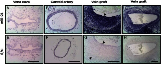 Localization of miR-21 in mouse vessels. In situ localization of miR-21 in the mouse inferior vena cava (A), carotid artery (B), and vein grafts harvested 28 days post-engraftment at high (C) and low magnification (D). (E–H) The corresponding control in situ hybridization with a scrambled probe. Filled arrows indicate neointimal thickness; scale bar represents 200 μm, applicable to all panels.