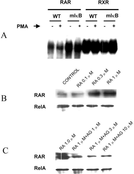 Activation (nuclear translocation) of NFκB precludes RAR-DNA interactions while RAR reversibly interacts with NFκB-DNA complexes in a ligand dependent manner. (A) RAR and RXR gelshift oligonucleotides were employed to contrast RAR and RXR-DNA binding activity in WT and mIκB-Line 1 tumor cells under basal and PMA (NFκB) induced conditions. Under basal conditions, we observe increased RAR-DNA binding activity in mIκB cells contrasted to their WT counterparts (1, 3), and a decrease in RAR-DNA binding activity upon activation of NFκB with PMA in both cell types (2, 4). No appreciable differences in RXR-DNA binding activity were observed under all experimental conditions. (B) NFκB gelshift oligonucleotides conjugated to agarose beads were used to pull down NFκB and NFκB associated proteins, from the total protein lysate of cells exposed to at-RA +/- AGN193109 for 24-h. We consistently pulled down comparable amounts of RelA-NFκB and observed a dose dependent increase in the association of RAR with NFκB-DNA complexes with increasing concentrations of at-RA, and its reversal by increasing concentration of AGN193109.