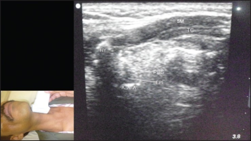 Left parasagittal view through thyrohyoid membrane using a linear transducer. The scan shows epiglottis (EPI), preepiglottic space (PES), hyoid bone (HY), strap muscles (SM), air-mucosal interface (arrowheads), and thyroid cartilage (TC)