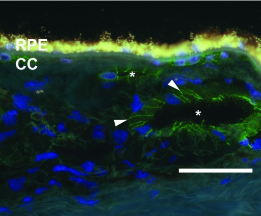 Immunohistochemical labeling of CDH5 (green fluorescence) in the choroid of an 86-year-old female donor. Note labeling in the choriocapillaris (CC) and at the margins of endothelial cells in larger choroidal vessels. Arrowheads indicate intercellular junctions and asterisks indicate vessel lumens. The yellow autofluorescence in the RPE is due to lipofuscin and the blue fluorescence is due to nuclear counterstaining with DAPI. Scale bar = 50 μm.