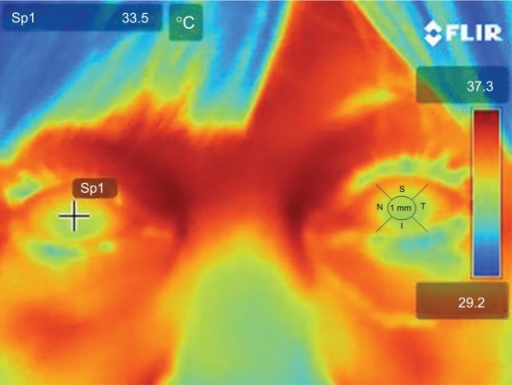 Digital thermal image from a representative patient.Notes: The cursor is placed in the center and then moved around into five different positions of the corneal surface. The process is repeated twice per eye. The left eye depicts the five zones from where every measurement was taken.Abbreviations: S, superior; I, inferior; N, nasal; T, temporal; 1 mm, central cornea 1 mm.