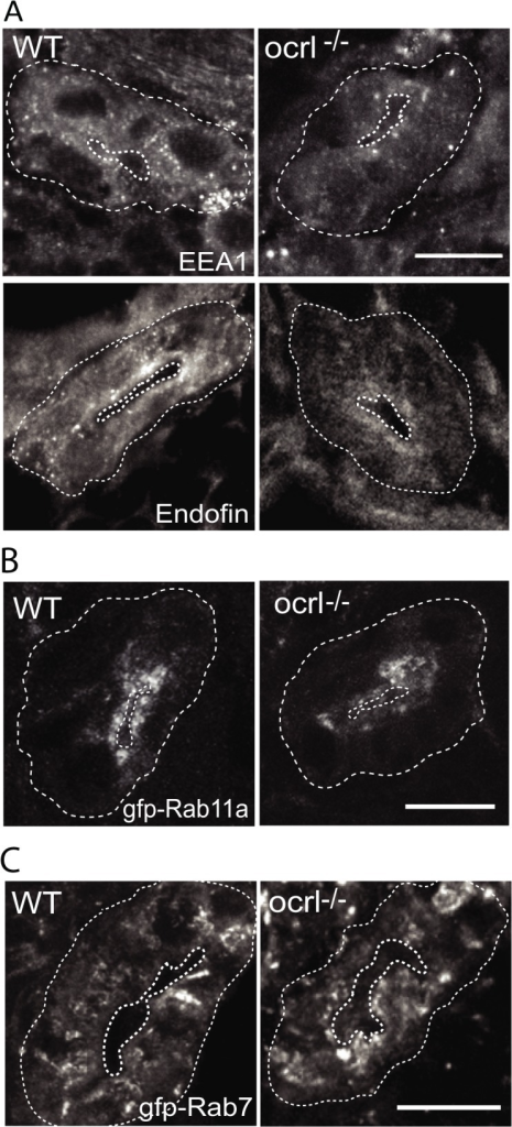 Reduced endosomal staining in OCRL1 deficient pronephros.A-C. Confocal transverse sections of the zebrafish proximal pronephric tubule of 72 hpf wild-type (WT) and ocrl-/- mutant embryos labelled with antibodies to EEA1 or endofin (A), or to GFP (B and C) to detect expressed GFP-Rab11 (B) or GFP-Rab7 (C). White dashed lines indicate the outline of pronephric tubules. Scale bars represent 10 μm.