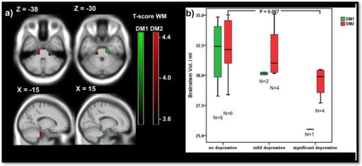 Depression and brainstem volume.a) Negative correlations between white matter and the depression grade in 12 DM1 (green) and 15 DM2 (red) patients: voxelwise multiple regression with the depression score (BDI-II) as covariate; areas with uncorrected p<0.001 at peak level are shown; X,Y,Z: MNI-coordinates: negative X-values reflect left side and positive X-values right sided location. b) Brainstem volume of DM1 and DM2 patients in dependency of the depression grade: no depression: score < = 11; mild depression: score 12–19; significant depression: score > 20; significance of group differences by Mann-Whitney-U tests.