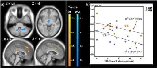 ESS and brain grey and white matter in DM2.a) Significant negative correlations between GM and WM and Epworth sleepiness score in 15 DM2 patients detected by voxelwise multiple regression analysis. Age was used as a covariate of no interest. Clusters with FWE corrected cluster p-values < 0.07 are depicted; MNI coordinates: negative X-values reflect left side and positive X-values right sided location. b) Scatterplot of global brain GM and WM in dependency on ESS; the lines and annotations reflect the results of the linear regression analysis.