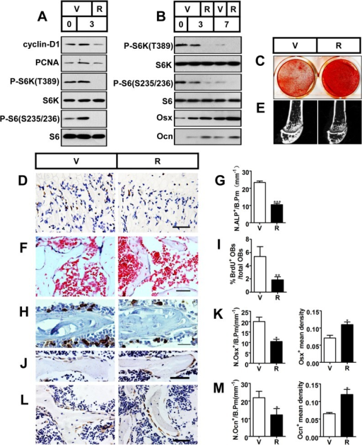 Inactivation of mTORC1 prevents preosteoblast proliferation but enhances their differentiation in vitro and in vivo.(A) Proliferating MC3T3-E1 cells were treated with vehicle (V) or 0.1 nM rapamycin (R) and underwent immunoblotting to detect proliferative markers (cyclin-D1 and PCNA) on the day of cell plating (day 0) and on the 3rd day. (B) Differentiating MC3T3-E1 cells were treated with vehicle or 0.1 nM rapamycin for the indicated time (3d, 7d) and underwent immunoblotting to detect osteoblastic markers (Osx and Ocn). (C) AR-S staining of differentiated MC3T3-E1 cells on the 14th day of osteogenic induction. (D) Immunohistochemistry staining for S6 phosphorylation (Ser235/236) in sections of distal femur of 10-week-old female C57BL/6 mice treated with vehicle (V) or rapamycin (R). (E) Micro-CT images of metaphyseal trabecular bone of the distal femur. (F) Alkaline phosphatase (ALP) staining of trabecular bone in sections from the distal femora (G) Quantification of osteoblast lineage cells stained with ALP. N.ALP+/B.Pm, number of ALP positive cells per bone perimeter (mm-1). Representative immunohistochemistry staining for (H) BrdU, (J) osterix, and (L) osteocalcin in femur sections. (I) Percentage of BrdU+ osteoblasts out of total osteoblasts on bone surface. (K, M) Number of Osx-positive cells (N.Osx+) and Ocn-positive cells (N.Ocn+) on the bone surface was measured as cells per millimeter of perimeter in sections (/B.Pm) and mean density of the corresponding positive cells was calculated as integrated optical density (IOD) per area of positive cells. All data are mean ± SD (n = 3 mice).Scale bar, 100 μm for (D) and 50 μm for (F), (H), (J), (L). *P < 0.05, **P < 0.01, ***P<0.001 by t test.