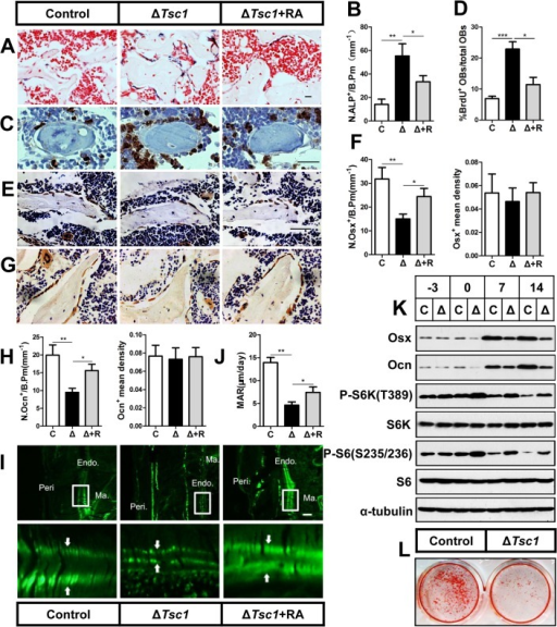 mTORC1 promotes proliferation of preosteoblasts but prevents their maturation.(A) ALP staining in sections of distal femur from 10-week-old control (C), ΔTsc1 (Δ) and rapamycin treated ΔTsc1 (Δ+R) mice. (B) Number of ALP positive cells per bone perimeter (mm-1) (N.ALP+/B.Pm). Immunohistochemistry staining for (C) BrdU, (E) osterix (Osx) and (G) osteocalcin (Ocn) in distal femur. (D) Percentage of BrdU+ osteoblasts out of total osteoblasts on bone surface. (F, H) Number of osterix positive cells (N.Osx+) and osteocalcin positive (N.Ocn+) on the bone surface was measured as cells per millimeter of perimeter in sections (/B.Pm) and the mean density of the corresponding positive cells was calculated as integrated optical density (IOD) per area of positive cells. (I) Calcin double labeling of cortical bone in distal femora. Boxed area is enlarged in the panel below. Ma.: marrow, Endo.: endosteum, Peri.: periosteum. (J) Mineral apposition rate (MAR). (K) Western blot analysis of differentiating primary calvarial preosteoblasts showed decreased expression of osterix and osteocalcin following doxycycline discontinuation in ΔTsc1 cells (0, 7th, 14th day). (L) Alizarin red staining of differentiated primary calvarial preosteoblasts on the 14th day showed decreased mineralized nodules in ΔTsc1 cells. All data are mean ± SD (n = 5 mice), scale bars represent 50 μm for (A), (C), (E), (G) and 100 μm for (I). *P < 0.05, ** P < 0.01, ***P<0.001 by t test.