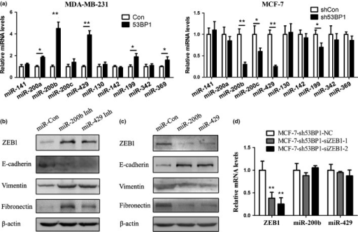 53BP1 inhibited ZEB1 expression by targeting miR-200b and miR-429 in breast cancer cell lines. (a) Changes in miRNA expression levels as measured by quantitative RT-PCR. (b) MDA-MB-231-53BP1 overexpressed cell lysates transfected with miR-control (Con) and miR-200b/429 inhibitors (Inh) were subjected to Western blot analysis. (c) MCF-7-sh53BP1 cell lysates transfected with miR-Control (Con) and miR-200b/429 mimics were subjected to Western blot analysis. (d) Regulation of miR-200b and -429 after transfecting siRNAs of ZEB1 in MCF-7-sh53BP1 cells. All experiments were carried out in triplicate, at minimum. Error bars, ±SEM. *P < 0.05, **P < 0.01 versus control (Student's t-test).