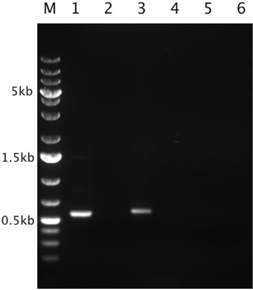 In situ expression of the Thiomonas arsenite oxidase and urease-encoding genes. Agarose gel analysis of transcripts corresponding to aioA, ureC, and the gene encoding the allophanate hydrolase amplified by performing RT-PCR on the RNA extracted from the bacterial community inhabiting the Carnoulès AMD. Lane M: GeneRuler™ 1kb DNA Ladder Plus (Fermentas). Lane 2, 4, and 6: negative controls (with each gene, the same reaction was performed but without any reverse transcriptase). Lane 1: RT-PCR product in the case of aioA (555 bp). Lane 3: RT-PCR product in that of ureC (570 bp). Lane 5: RT-PCR product in that of the allophanate hydrolase gene (515 bp). The amplification products were sequenced and the sequences predicted were obtained (i. e., those of aioA and ureC).