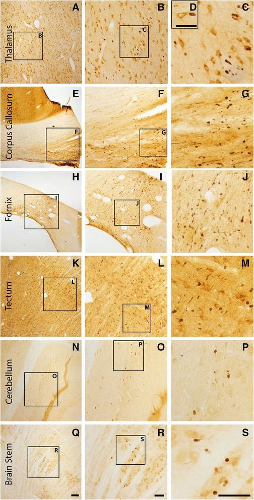 Axonal injury is observed in various regions throughout the micro pig brain following cFPI. Representative photomicrographs of APP immunohistochemistry in regions of the micro pig brain that demonstrated DAI in animals sustaining cFPI. Images in the middle panel (b, f, i, l, o, r) are magnified regions indicated in the images of the left panel (a, e, h, k, n, q) and images in the right panel (c, g, j, m, p, s) are magnified regions indicated in the middle panel (b, f, i, l, o, r), respectively. Note that DAI within the thalamus and tectum was diffusely distributed throughout the domain, while DAI within the other regions was more localized. Also note that while not common, APP+ proximal axonal swellings in continuity with the neuronal soma (d) were observed in the thalamus. Scale bar in q: 200 μm; r and s: 100 μm; d: 50 μm