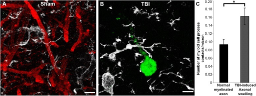 Microglia processes appear to preferentially contact TBI-induced proximal axonal swellings. Representative 3D reconstructions of MBP+ myelinated axons (red) or APP+ axonal swellings (green) and Iba-1+ microglia (white) in sham-injured (a) or central fluid percussion injured (b) thalami. c Bar graph depicting the average number of Iba-1+ microglial processes contacting either MBP+ myelinated fibers in the sham animals or APP+ axonal swellings in injured animals. Graph depicts the mean ± standard error of the mean. *p < 0.05. Scale bar: 5 μm