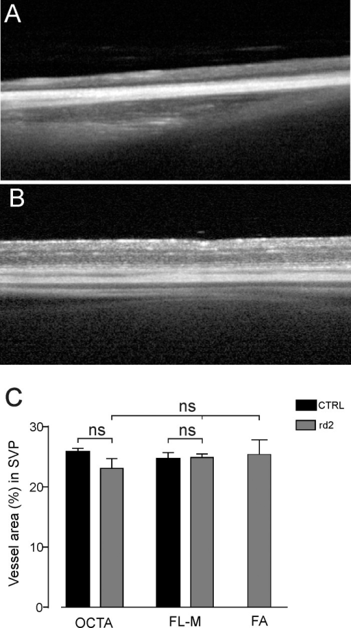 OCT-A imaging of C3A.Cg-Pde6b+Prph2Rd2/J mice. (A, B) Representative images illustrate retinal thickness in C3A.Cg-Pde6b+Prph2Rd2/J (A) mice and wild-type mice (B), respectively. (C) Vessel area (%) in SVP of wild-type mice and C3A.Cg-Pde6b+Prph2Rd2/J mice. No statistically significant difference in vessel density was observed comparing FA with OCT-A or flat-mount histology (unpaired t-test, ns, not significant).