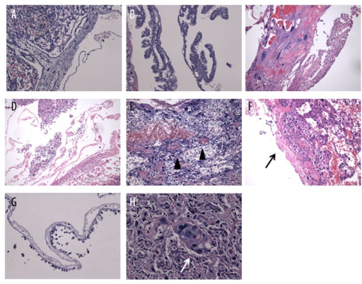Hematoxylin and eosin (HE) staining of placental tissue. (A, B) Non-exposed placental tissue did not shown abnormal pathological changes; (C–H) Placental tissues from PM2.5 exposure rats were described by: (C, D) placental infiltration of neutrophilic granulocytes involving amniotic membrane (E) thrombus (black triangle), (F) focal fibrinoid (black arrow), and (G) amnion with flat papillae and desquamated epithelial cells [=200×]. (H) Syncytiotrophoblast nodule (white arrow) observed from exposed placenta [=400×].