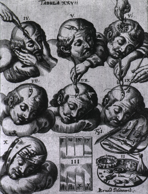 <p>Several scenes showing procedures for cranial surgery and instruments, some of which appear in Pl. 2.</p>