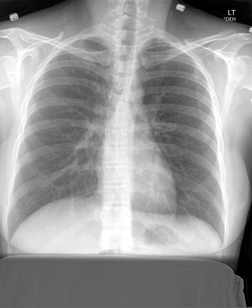 Chest radiograph examination 2 views performed XXXX, XXXX at XXXX.
