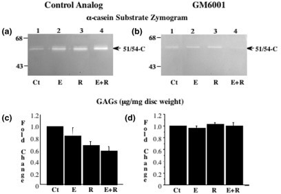 Inhibition of matrix metalloproteinase (MMP) activity prevents relaxin-mediated loss of glycosaminoglycans (GAGs). Conditioned medium from disc hemisections incubated with β-estradiol (Es), relaxin (R), or β-estradiol plus relaxin (Es+R) in the presence of the MMP inhibitor GM6001 or its control analog was assayed by casein substrate zymograms (a, b). Disc digests from these experiments were assayed for GAGs with the 1,9-dimethylmethylene blue assay, and the results were standardized to tissue dry weight (mg). Fold changes in GAG concentration (mean ± SD) were calculated and plotted (c, d). The untreated control (Ct) discs used in all experiments were exposed to control analog only. * P < 0.05, ** P < 0.01, *** P < 0.001 by Fisher's test.