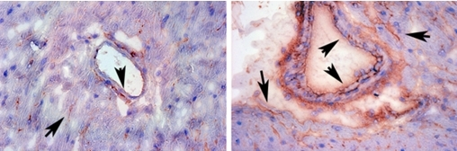 A COX-2 inhibitor (right) increases the expression of tissue factor (red) in heart vessels (arrows).