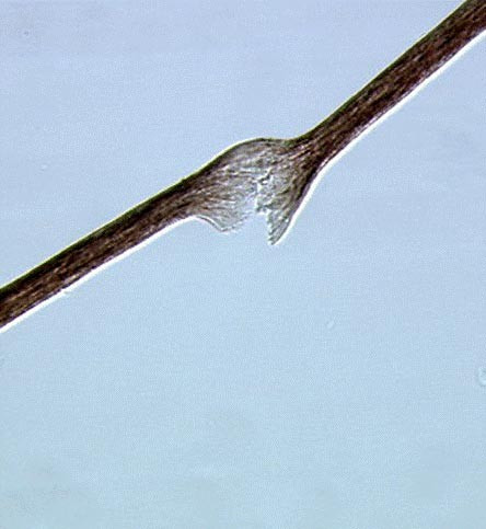 Microscopic analysis of the hair shaft showing trichorrhexis nodosa and longitudinal breaks.