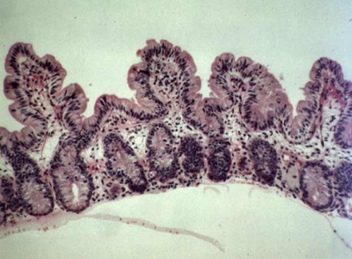 Small intestine biopsy of a patient with syndromic diarrhea showing moderate villous atrophy with low degree of mononuclear cell infiltration in the lamina propria. (Courtesy of Prof. Nicole Brousse, Hôpital Necker, Paris, France)