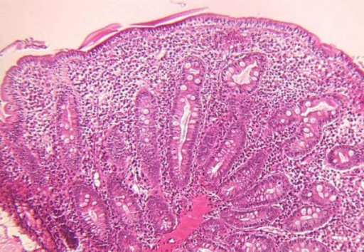 Small intestine biopsy of a patient with syndromic diarrhoea showing severe villous atrophy with intense mononuclear cell infirltration in the lamina propria. (Courtesy of Prof. Michel Peuchmaur, Hôpital Robert Debré, Paris, France)