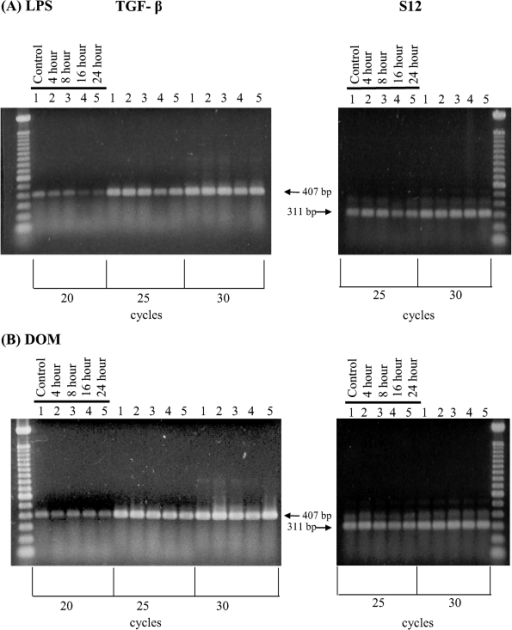 RT-PCR analysis of TGF-β1 gene expression in rat neonatal microglia after in vitro treatment with LPS or DOM. Rat neonatal microglia (2.8–5.0 x 106 cells/culture dish) were treated with (A) LPS [3 ng/mL] or (B) DOM [1mM] for 4 to 24 hours as described in Experimental. Amplification of TGF-β1 and S12 mRNAs showed the predicted cDNA size after separation on a 1.5 % agarose gel and visualization by SYBRR Gold nucleic acid staining. The S12 ribosomal RNA gene product was amplified for 25 and 30 cycles and demonstrated equal loading of the gels. Quantification of the TGF-β1 product was done after 20 cycles shown to be in the linear range. The figure depicts one of two similar experiments.