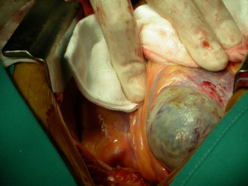 Surgical time. A large true aneurysm of the posterior wall of the left ventricle was found.
