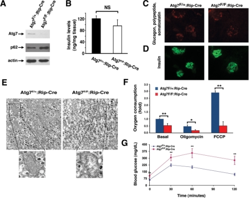Mice deficient in Atg7 expression within pancreatic β cells demonstrate altered mitochondria. (A) Western blot analysis of purified                                            pancreatic islets obtained from Atg7F/+:Rip2-CRE or Atg7F/F:Rip2-CRE                                            mice demonstrating the relative expression of Atg7, p62 and actin (loading                                            control). (B) Intracellular insulin levels (mean +/- SEM) in                                            pancreatic tissue of 8-9 week old Atg7F/+:Rip2-Cre (n=4 mice) or                                            Atg7F/F:Rip2-Cre mice (n=5 mice). The slight reduction in                                            insulin levels in the Atg7F/F:Rip2-Cre mice was not significant                                            when compared to the control. (C) Pancreatic sections of control                                            Atg7F/+:Rip2-Cre or Atg7F/F:Rip2-Cre mice were                                            stained for non-β cell components within the islets with the                                            simultaneous use of anti-glucagon, anti-somatostatin, and anti-polypeptide                                            antibodies. (D) Serial sections were used to visualize β cells                                            with an anti-insulin antibody.  Eight week old mice lacking autophagy in                                            β cells have qualitatively similar levels of α, δ, and polypeptide producing cells                                            within their islets, as well as similar levels of β cells when                                            compared to control mice. (E) Electron micrographs demonstrating the                                            accumulation of swollen, dysmorphic mitochondria within the Atg7-deficient                                            β cells. (F) Isolated islets from control and Atg7-/-                                            mice were assessed for fold +/- SEM changes in basal respiration (Atg7F/+:Rip2-Cre                                            isolated islets=1), and for oxygen consumption in the presence of                                            oligomycin (0.5 μM) or FCCP (0.5 μM). Results are normalized to islet                                            protein concentration and are from n=4 mice per genotype. (G)                                            Impaired glucose tolerance in Atg7F/F:Rip2-Cre mice. Blood                                            glucose measurements were made in 8-10 week-old control mice Atg7F/+:Rip2-Cre                                            (n=10 mice) or Atg7F/F:Rip2-Cre mice  (n=8 mice) following the                                            IP injection of D-glucose (1 g/kg).  Data represent the mean +/- SEM. *p≤0.05;                                            **p≤0.01.