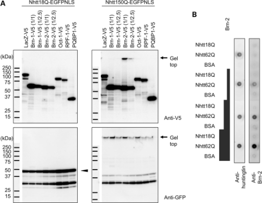 Brn-2 forms SDS-insoluble complex with mutant Nhtt in neuro2a cells and in vitro. (A) Co-aggregation of Brn-2 with mutant Nhtt in transfected neuro2a cells. Neuro2a cells were transfected with expression vector for Brn-1, Brn-2, Oct-1, RPF-1, PQBP-1 or LacZ tagged with V5 together with expression vector for Nhtt18Q-EGFP-NLS (left) or Nhtt150Q-EGFP-NLS (right). After 24 h, cells were subjected to SDS–PAGE and western blot analysis using anti-V5 (upper) or anti-GFP (lower) antibody. Bands for Nhtt18Q-EGFP-NLS are indicated by arrowhead and positions at the top of the gel are indicated by arrows. Bands for soluble Nhtt150Q-EGFP-NLS were not observed in the gel, possibly due to its efficient insolubilization, but they were detected at the top of the gel. In the case of Brn-1 and Brn-2, 1/2.5 the amount of plasmid DNA was used to make their expression levels similar to those of other proteins. (B) Co-aggregation of Brn-2 with mutant Nhtt in vitro. HRV-3C-treated Nhtt18Q, Nhtt62Q or BSA (0.2 mg/ml) was co-incubated with different concentrations of HRV-3C-treated His-TF-Brn-2 (0, 0.2, 0.5 or 1 mg/ml) at 37°C as indicated to the left of panels. After 20 h, the samples were subjected to filter trap assay and the aggregated proteins were detected with anti-huntingtin or anti-Brn-2 (C-2AP).