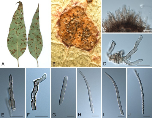 Pseudocercospora flavomarginata (CPC 14142). A. Leaf spots on upper and lower leaf surface. B. Close-up of leaf spot with fruiting. C. Fascicle with conidiophores and conidiogenous cells. D-F. Conidiogenous cells. G-J. Conidia. Scale bars = 10 μm.