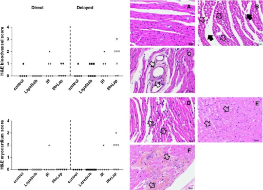 Histological changes in the myocardium and blood vessels at 40 weeks after treatment with irradiation or doxorubicin alone or in combination with lapatinib. H&E sections of the heart of mice that survived treatment with irradiation alone or in combination with lapatinib. Blood vessel and myocardium were scored for cardiac events at 40 weeks after treatment. Each symbol represents the score of one mouse (minimal five mice per group). a Age-matched control heart. b Dilated capillaries (open arrow) and edema in the stroma (dark arrow) of an irradiated heart. c Hyaline-like degeneration of the coronary arterioles (open arrows). d Atrophy of the myocardium (small, misshapen myocytes, and separated from each other, open arrows). (e) Degeneration of the myocardium. f Focal fibrosis (open arrows) and degeneration of endocardium