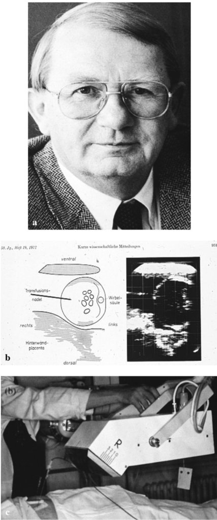 The Vidoson was the first real time scanner and was popular in Germany. The frame rate was slow, the resolution poor but Manfred Hansmann (a) pioneered ultrasound guided intrauterine therapy (b) with this equipment (c).