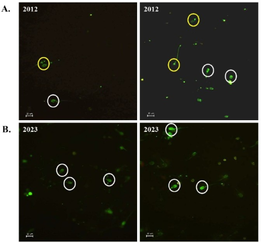 Comparison of acrosome formation in sperm from boar number 2012 and 2023. Acrosome was stained with FITC-PSA probe. (A) sperm from boar 2012, and (B) sperm from boar 2023. Yellow circles show the spermatozoa with acrosome defect and white circles contain the sperm head formed with normal acrosome (FITC-PSA, ×400). FITC-PSA, Fluorescein isothiocyanate-Pisum sativum agglutinin.