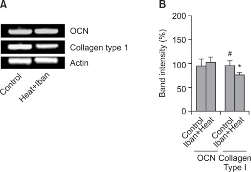 The mRNA expression of marker genes for bone formation. The mRNAs of Collagen type I and OCN from heat-, and ibanronate-treated rats and control, respectively were extracted and measured by RT-PCR (A). The histogram depicts the mRNA of Collagen type I and osteocalcin (OCN) compared to β-actin (B). Asterisk (*) indicates a significant difference (p<0.05) compared with the control (#). Each column represents the mean ± S.E.M. of three or four separate experiments.