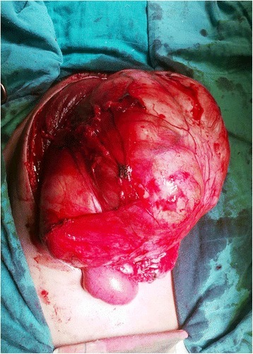 Intraoperative view showing the well encapsulated elastic soft tumor in the preperitoneal space.