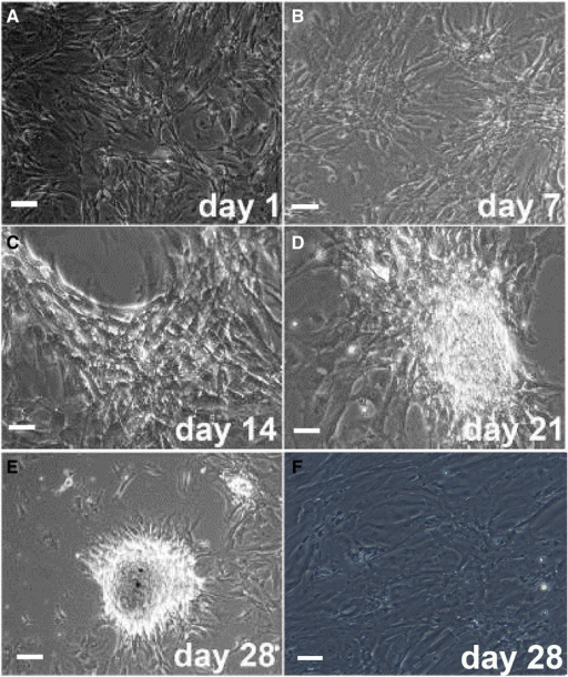 Morphology of human umbilical cord mesenchymal stem cells (HUMSCs) co-cultured with Sertoli cells (SCs). (A-E) HUMSC-derived germ cell-like cell colonies formed on a monolayer of SCs at specified time points after co-culture. (F) Morphology of SCs on day 28 after culture without HUMSCs. (Magnification 100×).