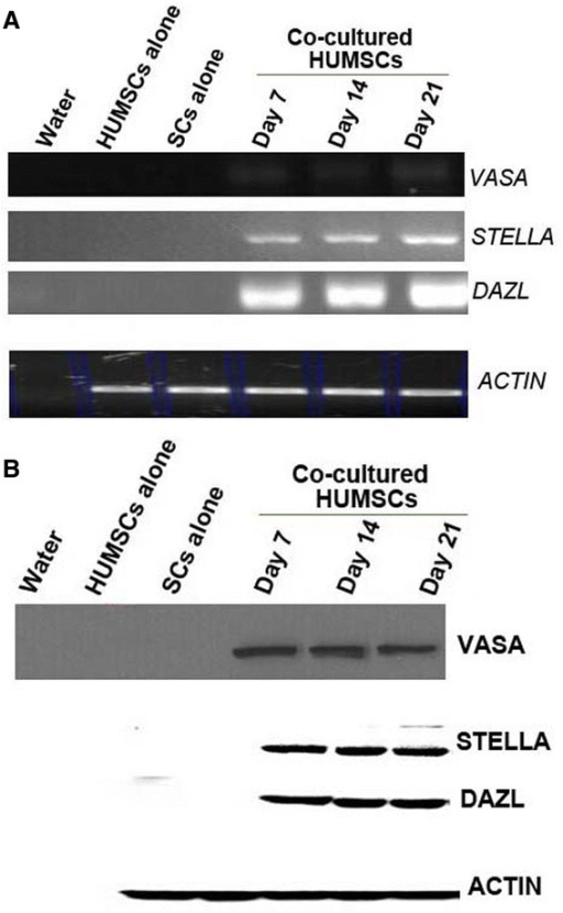 mRNA and protein expression of germ-cell markers STELLA, VASA and DAZL in human umbilical cord mesenchymal stem cell–Sertoli cell co-cultures. Total (A) RNA and (B) protein were prepared from human umbilical cord mesenchymal stem cells (HUMSCs) cultured alone or co-cultured with Sertoli cells (SCs) for different durations and used for RT-PCR and Western blot analyses. Water was used as a negative control, and β-actin (ACTIN) served as a loading control.