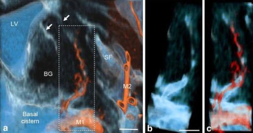 Communication of subarachnoid spaces with Virchow–Robin spaces (VRS) in the basal ganglia of a control subject. a Fusion image of coronal plane volume rendering constructive interference in the steady state (CISS) image and magnetic resonance angiography (MRA) image of the basal ganglia. Perivascular CSF spaces were observed around perforating arteries from the M1 portion of the middle cerebral artery (red) in the basal ganglia. They passed upward and then medially to the floor of the lateral ventricle (white arrows). Magnified view of the dotted square (b, c) showed clear continuity of CSF between the subarachnoid space in the basal cistern and VRS in the basal ganglia on CISS (b) and fusion images (c). Observation in a normal 69-year-old man, BG basal ganglia; M1, M2 M1 and M2 portions of the middle cerebral artery; LV lateral ventricle; SF Sylvian fissure, scale bar 5 mm.