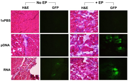 Histology of muscle tissues (transverse) by hematoxylin and eosin (H&E) staining, and expression of reporter protein (GFP) as delivered by intramuscular injection without EP (No EP) or with EP (+EP). Mice were injected intramuscularly with 50 µL of 1xPBS, pDNA or self-amplifying RNA vectors (pDNA or RNA, 5 µg/site). Images were obtained 2 days following treatment and are shown as representative of 6–8 slides taken per area, n = 4 muscles per group.